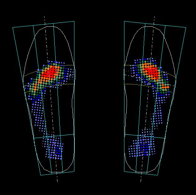 d54badc04ad Physical Gait System - Gazela Praha s.r.o.